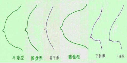 好看美丽的胸部是什么样子:什么样的胸部最美-第3张图片-IT新视野